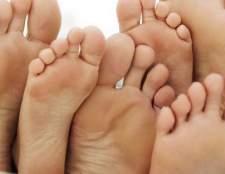 Позбавляємося від пітливості ніг раз і назавжди