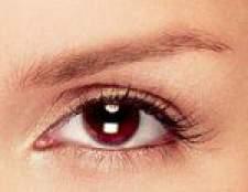 Як вилікувати ячмінь на оці